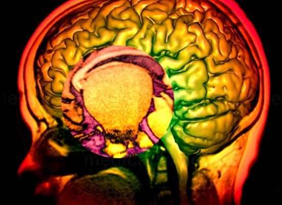 Post-graduate course Childhood Craniopharyngioma